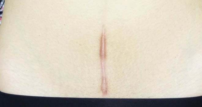 帝王切開後『1年半』経過した傷跡写真