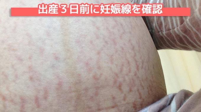 【写真】出産3日前に妊娠線を確認